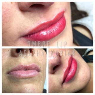 chicago permanent lips before and after